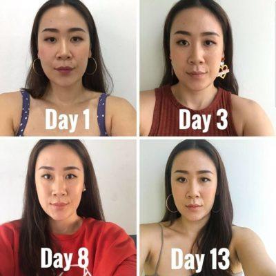 botox v shaped face